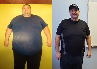 La Ronge man recovering from surgery to remove excess skin after losing 270 pounds